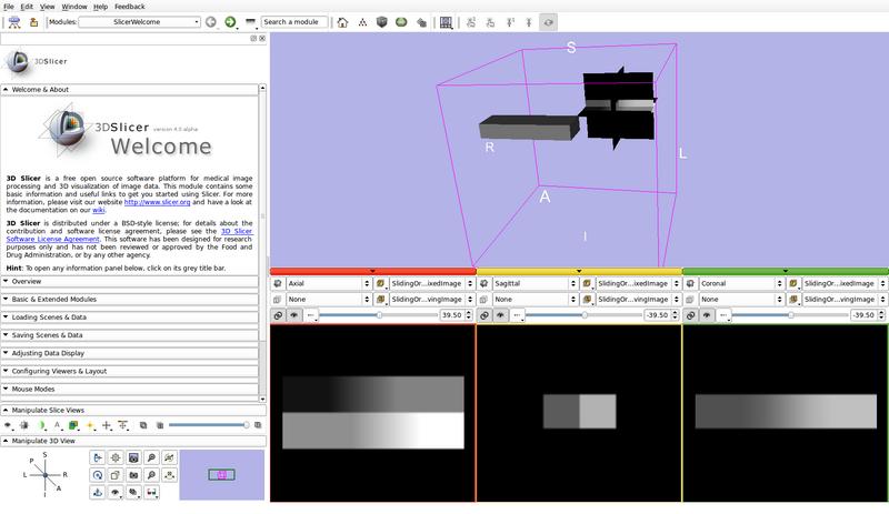 source code image segmentation matlab 5I6